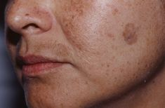 Simple Trick To Remove Brown Spots From Your Skin - Remedies Lore Facial Brown Spots, Brown Spots On Face, Dark Spots, Beauty Care, Beauty Hacks, Beauty Tips, Face Wrinkles, Beautiful Lips, Face Wash