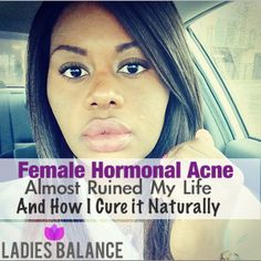 female hormonal acne almost ruined my life and how I cure it naturally