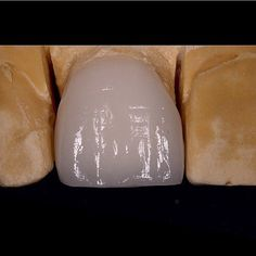 Seeing as I obsess over my job every day. Only right I start my first dental post with my new camera  Single Feldspathic Porcelain Veneer ready to be bonded! Beautiful surface texture and translucency to mimic natural anatomy  Lots of careful planning with my dental technician myself and the patient to get this right as matching a single veneer can be very tricky. Make sure your dentist cares for your appearance as much you do…