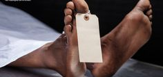 """""""Vão morrer"""" afirma chefe da neurocirurgia do HBDF ao se referir a três pacientes, por falta de válvula VDE – Política Distrital"""