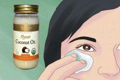 Ecco come sembrare 10 anni più giovane utilizzando l'olio di cocco per 2 settimane!