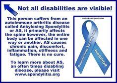 Chronic Inflammatory Disease, Autoimmune Disease, Chronic Illness, Chronic Pain, Fibromyalgia, Ankylosing Spondylitis Diet, Anklosing Spondylitis, Si Joint, Seizures