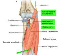 pronator teres and median nerve | entrapment syndromes - upper, Human Body