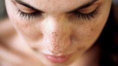 Traitements naturels des taches brunes sur le visage et la peau