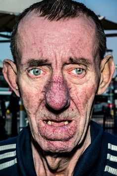 Pain is skin deep: Extreme close-up portraits of people on the edge   Dangerous Minds