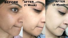 3 months challenge that will completely change your skin