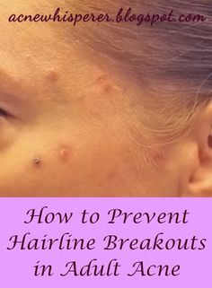 The #Acne Whisperer #Blog for #Adult #Acne: Easy Fixes For #Hairline #Breakouts.