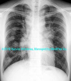 11. その他の肺疾患 症例097:サルコイドーシス 胸部単純X線写真,『コンパクトX線アトラスBasic 胸部単純X線写真アトラス vol.1 肺』 Radiology