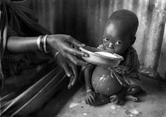 """""""Seven out of 10 childhood deaths in developing countries can be attributed to just five main causes - or a combination   of them: pneumonia, diarrhoea, measles, malaria and malnutrition. Around the world, three out of four children   seen by health services are suffering from at least one of these conditions.""""  World Health Organisation (1996)"""