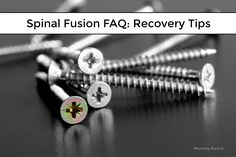 Frequently Asked Questions about Spinal Fusion Surgery: Do you have any spinal fusion surgery recovery tips or suggestions? Spinal Stenosis Surgery, Lumbar Spinal Stenosis, Scoliosis Surgery, Spinal Fusion Surgery, Neck Surgery, Spine Surgery, Kids Workshop, Surgery Recovery, Nerve Pain