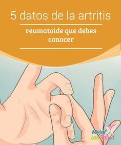 5 datos de la #ArtritisReumatoide que debes conocer  Aunque suele ser más común a partir de los 60 años, lo cierto es que hay casos de artritis reumatoide que pueden aparecer antes y no identificarse como tales #Curiosidades