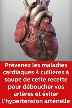 Prévenez les maladies cardiaques 4 cuillères à soupe de cette recette pour déboucher vos artères et éviter l'hypertension artérielle