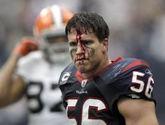 Foul play    Houston Texans linebacker Brian Cushing reacts after he was hit in the face by Cleveland Browns offensive guard Shawn Lauvao in the second quarter of their game on Sunday in Houston. Lauvao was called for a personal foul.