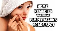 How to Remove Pimple Marks Naturally & Fast? How to remove pimple marks? Home Remedies to get rid of pimple marks fast. How to get rid of pimples fast? How to get rid of pimples marks. Fade pimple scar