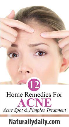 14 Best Acne Spot Treatments 14 Get Rid Of Pimples Fast Images Acne Spot Treatment Best Acne Spot Treatment Acne Spots