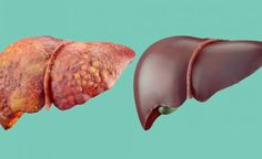 The liver is one of the most important organs in our bodies! Here are 5 of the best natural liver supplements for improved health. Natural Cleanse, Natural Detox, Natural Cures, Juice Cleanse Recipes, Detox Recipes, Soup Recipes, Liver Detox Symptoms, Best Way To Detox, Cleanse Your Liver