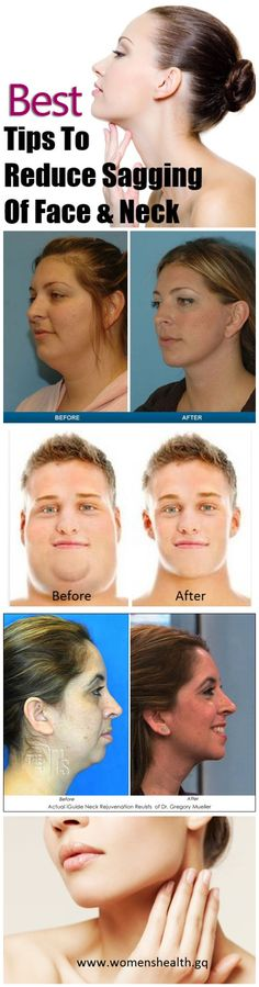 Facial Exercises For Sagging Neck. Facial Exercises For Sagging Neck. Double Chin Exercises, Neck Exercises, Facial Exercises, Facial Yoga, Facial Massage, Beauty Skin, Health And Beauty, Hip Problems, Sagging Skin
