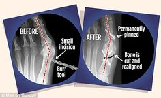 Minimally Invasive Bunion Surgery: How the 30-minute procedure works