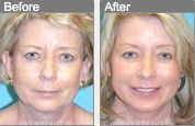 A chin implant not only changes a patient's profile, but the front view as well!