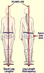 """Read Later: Download this Post as PDF >> CLICK HEREA highly debated postural issue begging for a logical explanation is the SHORT right-leg syndrome"""" (Fig. 1). Although an inferred awareness of right-sided limb-length shortness has existed for centuries, along with decades of published research, no one has provided a universally acceptable answer to two very …"""