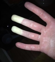 Raynaud's phenomenon is a condition resulting from poor circulation in the extremities. In a person with Raynaud's phenomenon, when his or her skin is exposed to cold or the person becomes emotionally upset, the blood vessels under the skin tighten and the blood flow slows. This is called vasospasm. Hands and feet have fewer large blood vessels and, therefore, when a vasospasm occurs, it is harder for the blood to keep flowing and these areas