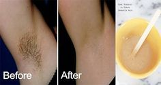 How to Remove Unwanted Hair Permanently? Natural Ways for Unwanted Hair Removal! Beauty Care, Diy Beauty, Beauty Hacks, Yellow Underarm Stains, How To Remove, How To Apply, How To Make, Unwanted Hair, Unwanted Facial