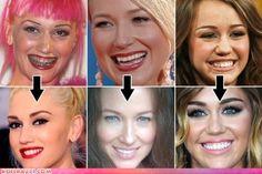 celebrities gone dental