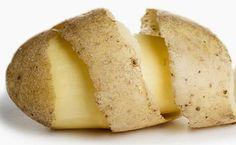 Home remedies for eczema: raw potato poultice Severe Psoriasis, Eczema Causes, Eczema Symptoms, Eczema Scalp, Eczema Baby, Home Treatment, Natural Treatments, Health And Wellness, Potatoes