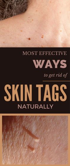 Most Effective Ways to Get Rid of Skin Tags Naturally