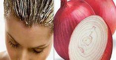 Луковый сок творит чудеса! Уникальный рецепт для борьбы с выпадением волос. Твои волосы засияют новой силой и здоровьем!