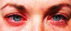 Yeux rouges à cause des allergies au pollen 11 remédes