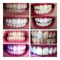 Teeth Whitening Thursday's Some before and after photos of our customers using…