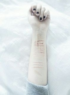 "Self harm is not beautifully tragic. It's not a trend. It's a sign of defeat. A sign that someone giving up on life. It's not attention seeking. It's not a good thing. Its matching feelings that you can't keep inside anymore. It's expressing them on yourself because you feel so alone. Stop making self harm a trend. A ""cool"" thing to do. Because it's not. It's life ruining."