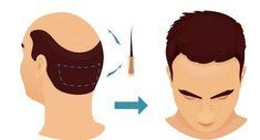 Transplantul de păr, soluția salvatoare pentru multe persoane care vor să scape de chelie. Care este cea mai eficientă metodă Mai, Chelsea, Disney Characters, Fictional Characters, Disney Princess, Remedies, Movies, Movie Posters, Films