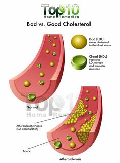 good vs bad cholesterol