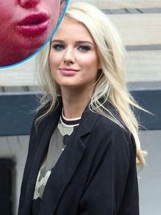 Helen Flanagan Lip Plumping Plastic Surgery Before and After Lip Injection Pictures is available so get her face before and after look and lip injection surgery details. Lip Injections, Lip Plumper, Matilda, Helen Flanagan, Hourglass Dress, All Actress, Lip Service, Plastic Surgery, Body Shapes