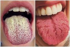 This Powerful Homemade Tea Cures Swollen Legs in Few Days – My Healthy Life Guru Healthy Tongue, Tongue Health, Health And Beauty, Health And Wellness, Health Tips, Health Blogs, White Coated Tongue, White Tongue Causes, Health Products