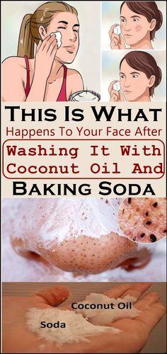 Baking soda and coconut oil face wash, can be very good for washing your face. E… Baking soda and coconut oil face wash, can be very good for washing your face. Exfoliating your skin. Baking Soda Coconut Oil, Baking Soda Shampoo, Dry Shampoo, Baking Soda Face Scrub, Natural Shampoo, Baking Soda In Hair, Baking Soda Nails, What Is Baking Soda, Baking Soda Facial