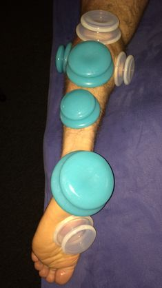 Now You Can Do Chinese Cupping Therapy On Yourself Therapy Complementary Alternative