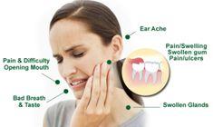 Wisdom Teeth Pain Relief -15 Best Home Remedies