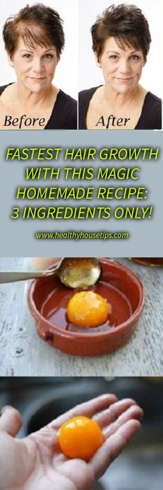 FASTEST HAIR GROWTH WITH THIS MAGIC HOMEMADE RECIPE: 3 INGREDIENTS ONLY!