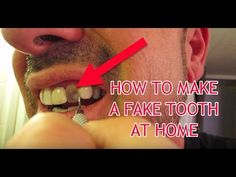 How to make a Fake Tooth at home! Fix Teeth, Teeth Care, At Home Glute Workout, Cracked Tooth, Tooth Crown, Tooth Replacement, Teeth Implants, Free Dental, Receding Gums