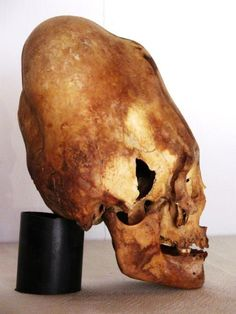 Results from the first 3 Paracas skulls tested, released on June 14 2012 have… Ancient Aliens, Ancient History, Ufo, Nazca Lines, Mystery Of History, Ancient Mysteries, Interesting History, Ancient Civilizations, Archaeology