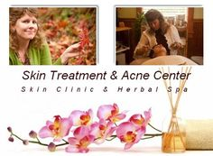 $42.50 for Deluxe Aromatherapy Facial at Skin Treatment and Acne Center in Santa Cruz ($85 value)