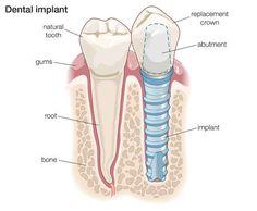 Amazing Full Mouth Rehabilitation Using Dental Implants