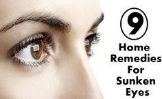 DIY Home Remedies, Kitchen Remedies and Herbs - http://www.remediesandherbs.com/9-home-remedies-for-sunken-eyes/