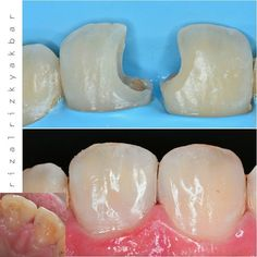 Another view same case #directcomposite #compositerestoration #compositefilling #dentist #odontologia #dentistry #dentalanatomy #dentalphotography #directrestoration #biomimetic #rubberdam #rubberdamology by rizalrizkyakbar Our General Dentistry Page: http://www.myimagedental.com/services/general-dentistry/ Google My Business: https://plus.google.com/ImageDentalStockton/about Our Yelp Page: http://www.yelp.com/biz/image-dental-stockton-3 Our Facebook Page…