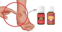 The Essential Oils Anyone With Edema Needs: When fluids are trapped and collected in your lower limbs, they are unable to circulate through the rest of your body and cause your legs, ankles, and feet to become swollen. This condition is known as edema. Essential Oils For Depression, Yl Essential Oils, Young Living Essential Oils, Essential Oil Blends, Yl Oils, Fluid On The Knee, Doterra, Foot Remedies, Natural Remedies