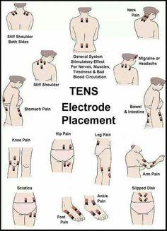 TENS unit placement
