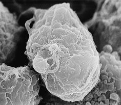 hiv virus under electron microscope - Google Search
